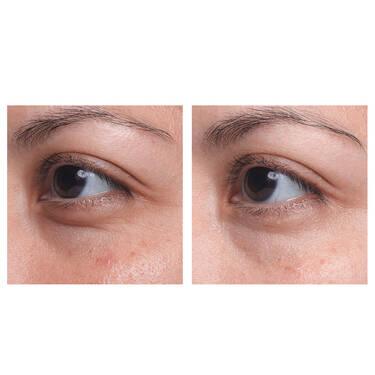 Visionnaire Eye Cream Advanced Multi-Correcting Eye Balm(微修护系列高级多效抗痕微整修缮眼霜)